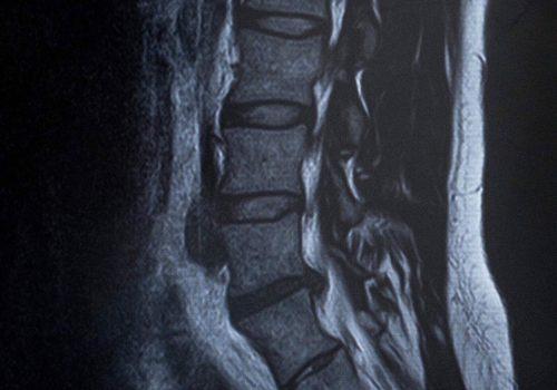 理学療法士 田代雄斗先生のコラムスタート「腰痛と解剖」