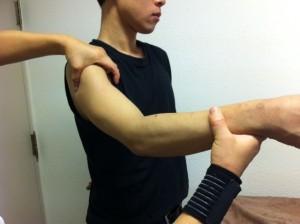 肩関節周囲炎_2_640